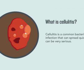 Cellulitis: Causes, Symptoms, Diagnosis, and Treatment   Merck Manual Consumer Version Quick Facts